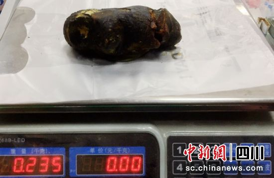 病人体内取出的单枚结石达235克重。李华时摄